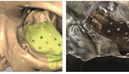 3D Printed SLS Orbital Implant Helps The Patient Restore Her Vision